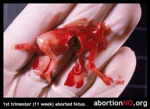 40% des évangéliques favorables au « droit à l'avortement » ? Fetus08
